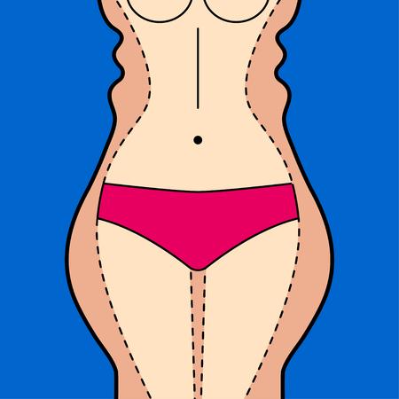 Fettabsaugung. Fettabsaugung Hüften, Oberschenkel, Bauch. Entfernung von Fett. Plastische Chirurgie. Vektor auf Lager Vektorgrafik