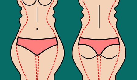 Liposuction of body. Slim hips, thin waist. Weight loss. Plastic surgery beautiful female figure. Vector illustration