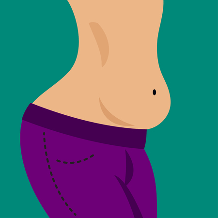 Girl with hanging tummy. Big belly skinny fat, obesity, diet, exercise. Vector illustration.