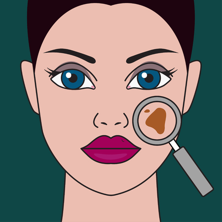 Pigment spot on female face under  magnifying glass. Vector illustration