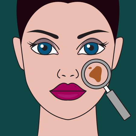 Pigmentvlek op vrouwelijk gezicht onder vergrootglas. Vector illustratie