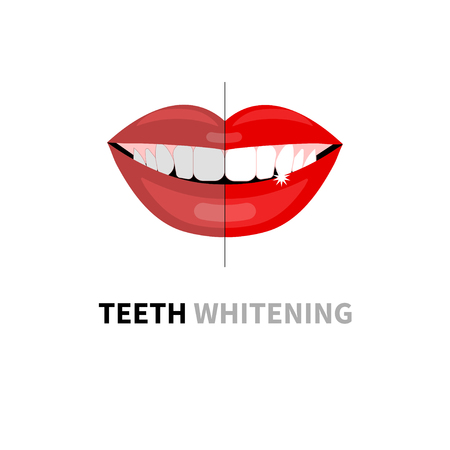 Teeth whitening before and after. Beautiful womans smile with white teeth. Vector illustration Vectores