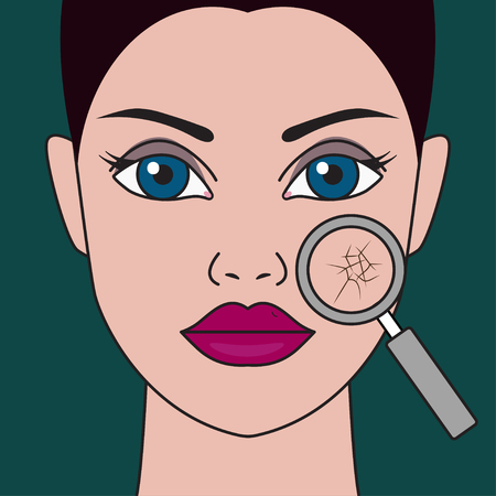 Dry skin of face. Chapped dehydrated skin through magnifying glass. Portrait head of beautiful girl. Vector illustration