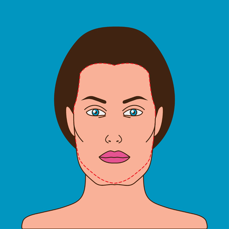 Female face with sagging cheeks and correction of flews. Anti-aging beauty treatments. Plastic surgery, facelift lower third of face. Vector illustration