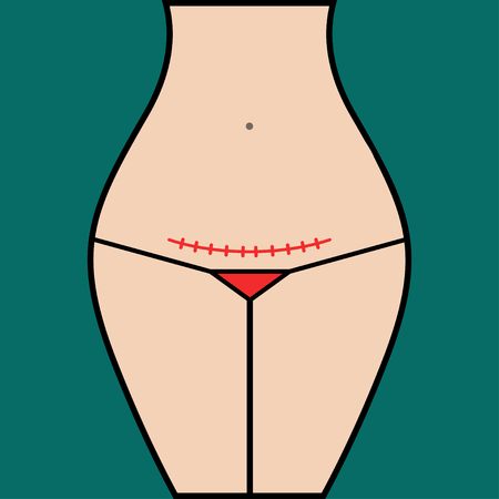 Seam after cesarean section. Woman with scar on his stomach vector illustration.