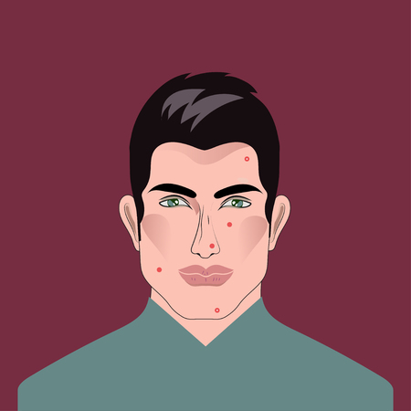 Man with acne, pimples vector illustration