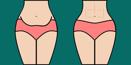 Body before and after weight loss. Woman with fat belly and girl with amazing abs, toned abdominal muscles. Vector illustration