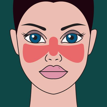 Systemic lupus erythematosus Illustration