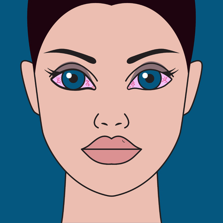 Red, dry eyes, inflammation. Girl with eye infection Vector illustration