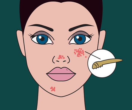 pimples on skin