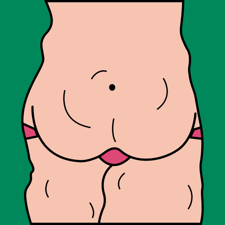 Fat, female belly, flabby skin, weight loss, diet, plastic surgery, liposuction. Vector illustration