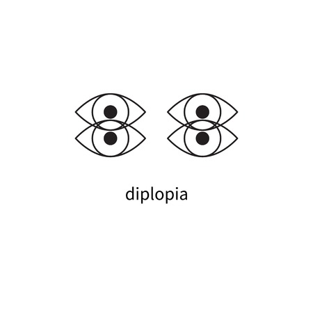 Diplopia sign, double vision, icon diplopia, dizziness Stock vector Иллюстрация