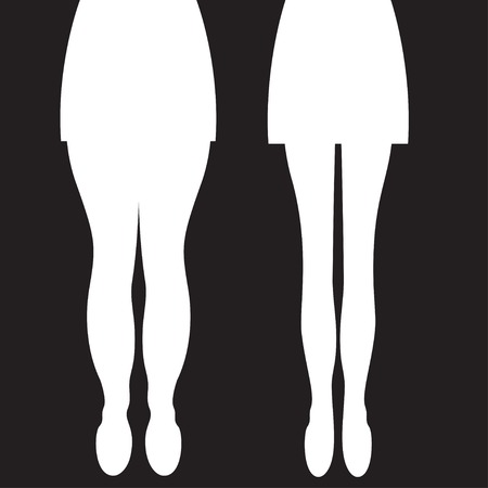 Female thick and slender legs before and after weight loss, beautiful body, liposuction legs, legs massage. Vector illustration