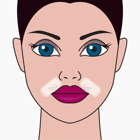 Girls mustache, cosmetic defect, hair removal with wax, skin care, womans mustache. Vector illustration Archivio Fotografico - 127119729