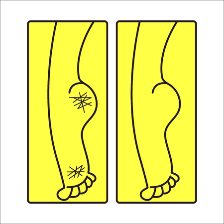 Dry cracked female feet, care for dry calloused feet, heels before and after pedicure. Vector line illustration