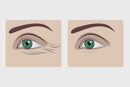 Entfernung von Falten unter den Augen, Blepphoroplastik der unteren Augenlider, Verjüngung der Haut unter den Augen, Auffüllen von Gesichtsfalten. Vektorillustration vorher und nachher