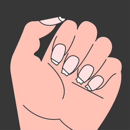 Brittle nails, female hand with thin broken nails. Vector illustration