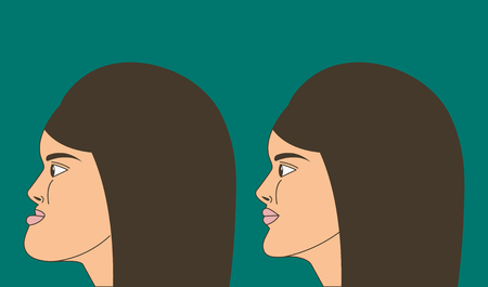 Mesial bite, woman with malocclusion, lower jaw extended forward, bite correction by braces. Vector illustration