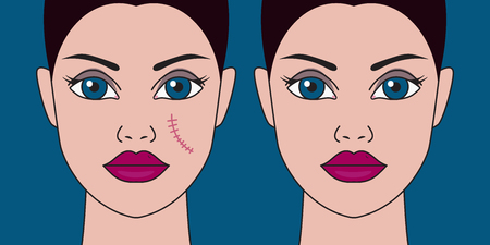 Removal of scars from face