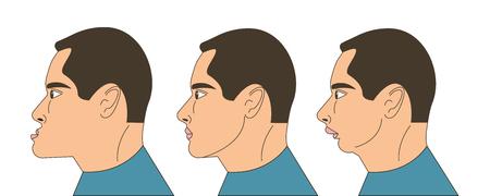 Mesialer und distaler Biss, Mann mit Malokklusion, Unterkiefer nach vorne gestreckt, Unterkiefer zurückgeschoben, Bisskorrektur durch Zahnspange. Vektor-Illustration