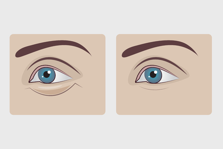 Bags under eyes of woman, plastic surgery to remove hernia under eyes of girl, swollen lower eyelid. Vector illustration