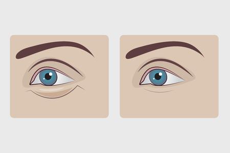 Bolsas debajo de los ojos de la mujer, cirugía plástica para extirpar la hernia debajo de los ojos de la niña, párpado inferior hinchado. Ilustración vectorial