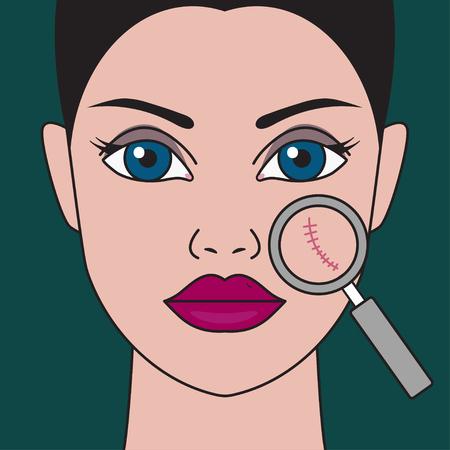 Enlèvement des cicatrices du visage, femme avec cicatrice sur la joue, resurfaçage de la peau au laser, ablation chirurgicale de la cicatrice. Illustration vectorielle