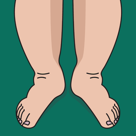 Gonfiore di stinchi e piedi, donna con gambe gonfie. illustrazione vettoriale Vettoriali