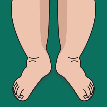 Schwellung der Schienbeine und Füße, Frau mit geschwollenen Beinen. Vektor-Illustration Vektorgrafik