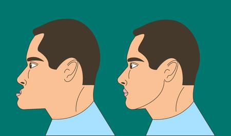 Mesialer Biss, Mann mit Malokklusion, Unterkiefer nach vorne gestreckt, Bisskorrektur durch Zahnspange. Vektor-Illustration