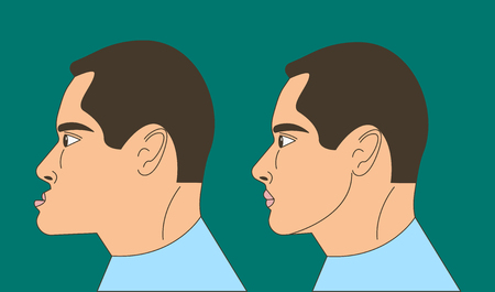 Mesial bite, man with malocclusion, lower jaw extended forward, bite correction by braces. Vector illustration Illustration