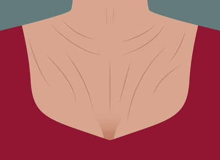 Female wrinkled neck and decollete, chest. Skin aging. Vector illustration