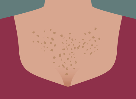 Skin aging, spots on body, neckline, protects skin from sunburn, pigmentation on chest, freckles on chest. Vector illustration