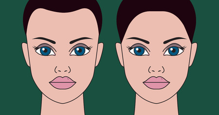 Hair transplantation in women, correction of receding hairline, plastic surgery for hair transplantation. Vector illustration Illustration