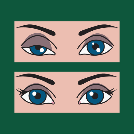 Ptosis of eyelid at woman, asymmetry of eyes, plastic surgery, operating correction of ptosis eyes girls. Vector illustration before and after