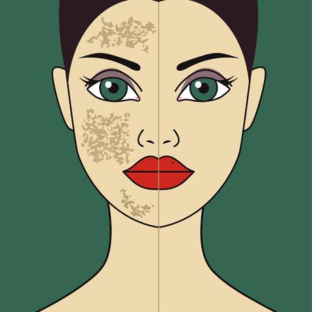 Akne mark, laser polishing of girls skin, uneven rough skin texture of womans face, acid peeling. Vector illustration
