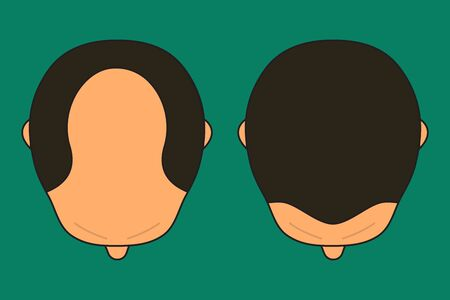 Baldness in man, male with bald head, before and after hair transplantation, male alopecia, plastic surgery, treatment, top view. Vector illustration Stock Illustratie