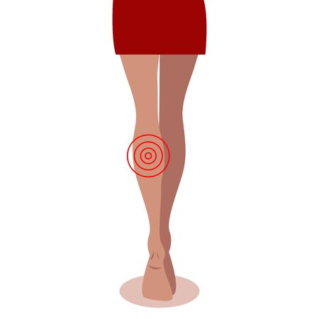 disease of female legs