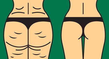 Perte de poids, comparaison corporelle Vecteurs