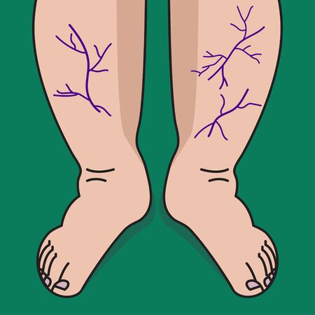 Varicose veins on legs of woman. Veins and vessels on shins Illustration