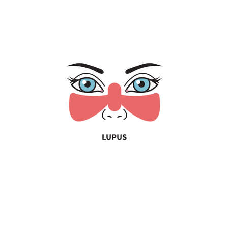 Systemic lupus erythematosus. Woman with red spot on her face