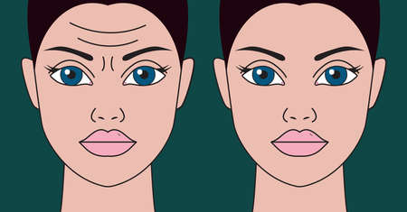 Wrinkles on womans forehead before and after botulinum toxin injections. Vector illustration