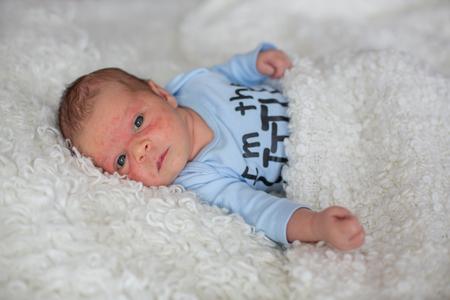 小さな新生児の赤ちゃんを探して、赤ちゃんの皮膚発疹、子供の皮膚炎の症状の問題発疹、新生児は皮膚にアトピー症状を患っています。概念子供