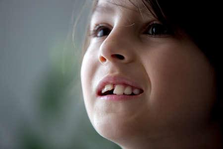 Preteen boy, needing braces, having his front teeth growing in bad position Stock Photo