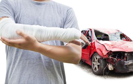 fractura: primer plano de brazo vendado con coche destrozado azul