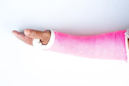 splint: férula de brazo, ya sea en el molde de yeso Foto de archivo