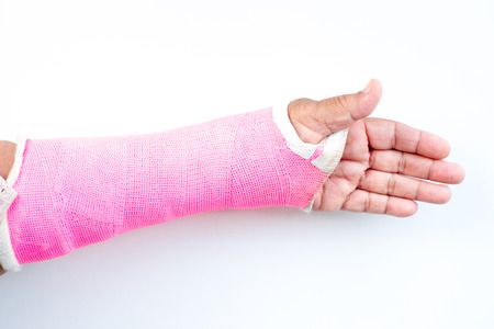 splint: arm splint, be in plaster cast