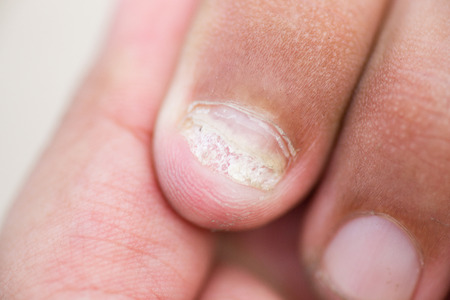 itraconazole: Fungus Infection on Nails of finger
