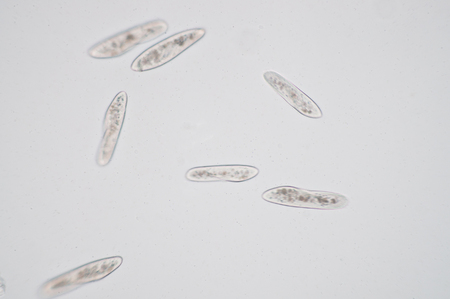 widespread: Paramecium is a genus of unicellular ciliated protozoa,  Paramecia are widespread in freshwater, brackish, and marine environments and are often very abundant in stagnant basins and ponds.