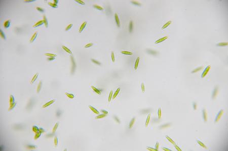 algal: Euglena is a genus of single-celled flagellate Eukaryotes. Stock Photo